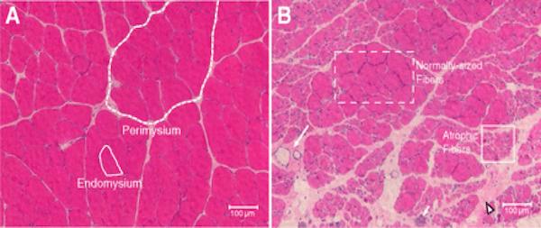 Мышечные клетки под микроскопом